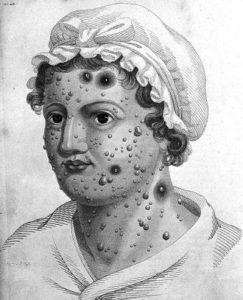 molluscum contagiosum on face